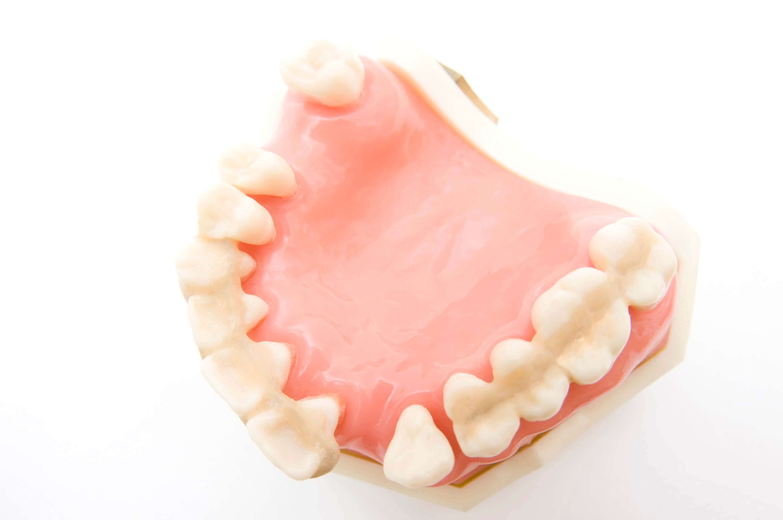 スピーディで患者さん一人ひとりに合った入れ歯